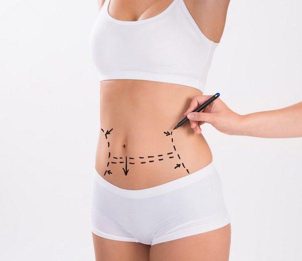 Abdominoplastia antes
