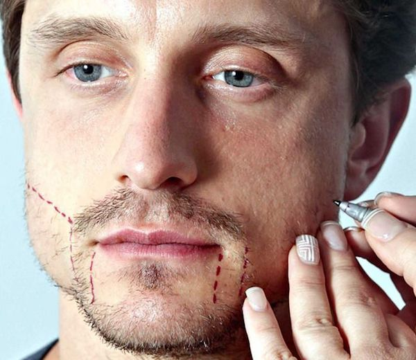 Transplante de barba antes